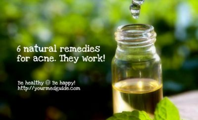 6 acne natural remedies that work Vidya Sury